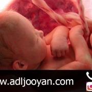 اهدای جنین