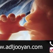 در چه مواردی سقط جنین قصاص دارد؟
